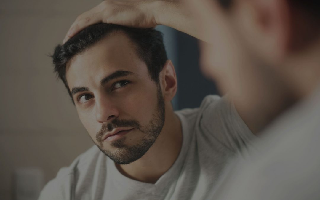 Male Pattern Baldness–Which Treatments Actually Work?