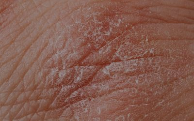 Eczema: Definition and Treatment Options